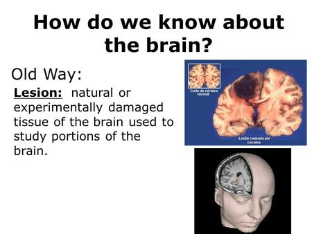 How do we know about the brain? Lesion: natural or experimentally damaged tissue of the brain used to study portions of the brain. Old Way: