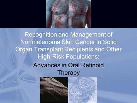 Recognition and Management of Nonmelanoma Skin Cancer in Solid Organ Transplant Recipients and Other High-Risk Populations: Advances in Oral Retinoid <strong>Therapy</strong>.