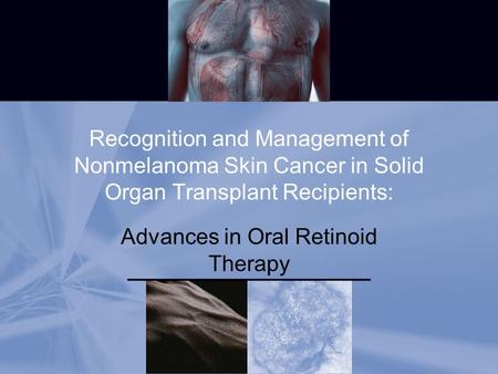 Recognition and Management of Nonmelanoma Skin Cancer in Solid Organ Transplant Recipients: Advances in Oral Retinoid <strong>Therapy</strong>.