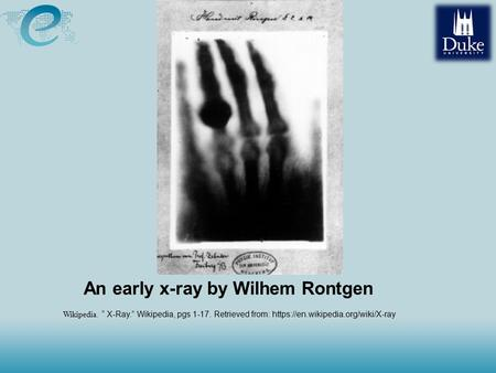 "An early <strong>x</strong>-<strong>ray</strong> by Wilhem Rontgen Wikipedia. "" <strong>X</strong>-<strong>Ray</strong>."" Wikipedia, pgs 1-17. Retrieved from: https://en.wikipedia.org/wiki/<strong>X</strong>-<strong>ray</strong>."