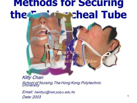1 Methods for Securing the Endotracheal Tube Kitty Chan School of Nursing,The Hong Kong Polytechnic University   Date: