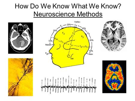 How Do We Know What We Know? Neuroscience Methods.
