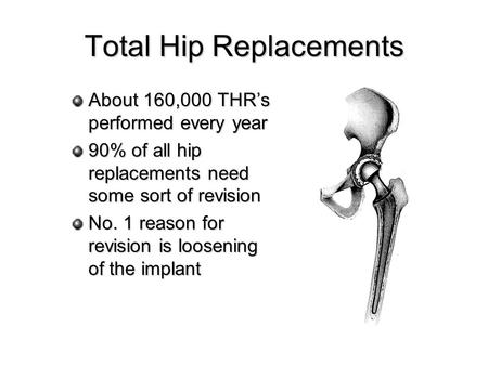 Total Hip Replacements About 160,000 THRs performed every year 90% of all hip replacements need some sort of revision No. 1 reason for revision is loosening.