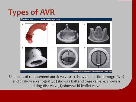 Types of AVR Examples of replacement aortic valves: a) shows an aortic homograft, b) and c) show a xenograft, d) shows a ball and cage valve, e) shows.