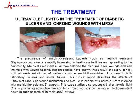 ULTRAVIOLET LIGHT C IN THE TREATMENT OF DIABETIC ULCERS AND CHRONIC WOUNDS WITH MRSA The prevalence of antibiotic-resistant bacteria such as methicillin-resistant.