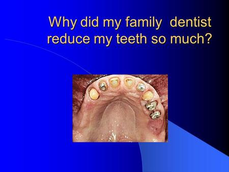 Why did my family dentist reduce my teeth so much?