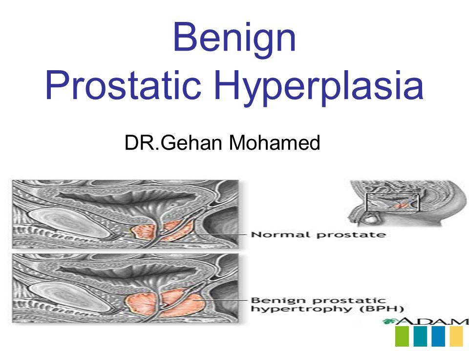 benign prostatic hyperplasia treatment ppt Krónikus prosztatitis gyógyítás