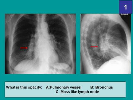 1 What is this opacity: A:Pulmonary vessel B: Bronchus