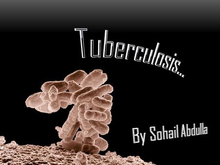Tuberculosis… By Sohail Abdulla.