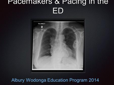 Pacemakers & Pacing in the ED Albury Wodonga Education Program 2014.