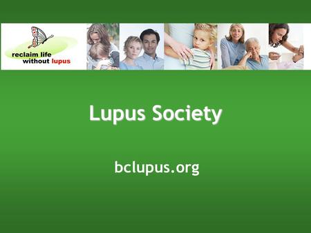 Bclupus.org Lupus Society. bclupus.org What is Lupus? It is an acute chronic autoimmune disease The immune system over-activates and misfires It can target.