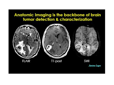 CT Scan Reveals a mass that may or may not be enhanced with use of contrast medium. On CT, low-grade gliomas may be isodense with normal brain parenchyma.