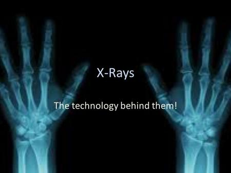 X-Rays The technology behind them!. The EM used The EM used for x ray machines is x-rays. X-rays are a type of electromagnetic radiation X-rays are basically.