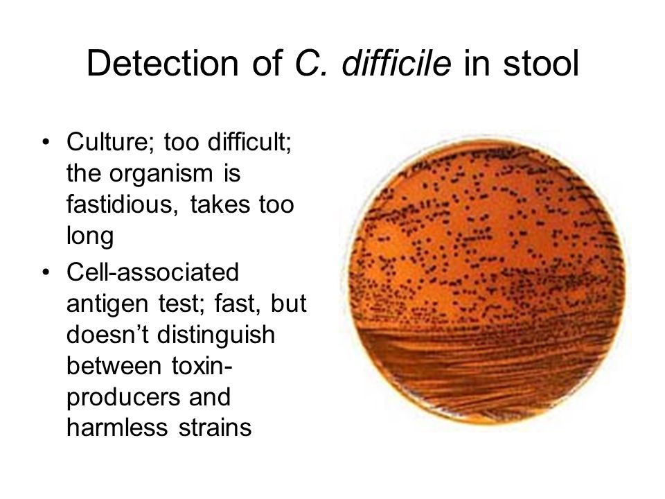 clostridium difficile culture