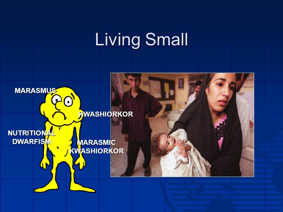 Living Small MARASMUS KWASHIORKOR NUTRITIONAL DWARFISM