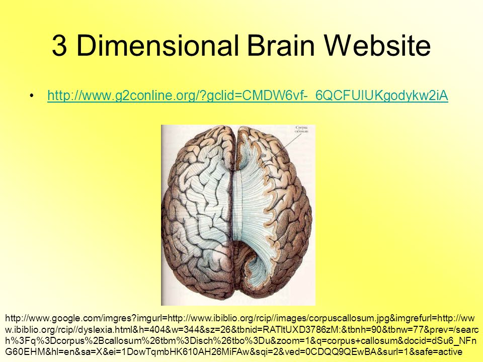 Parts of the brain ppt video online download 3 dimensional brain website ccuart Images