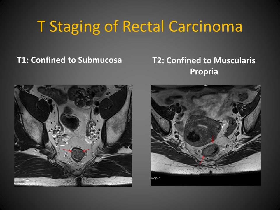 Role Of Mri In Primary Rectal Cancer Staging And Management Ppt Video Online Download