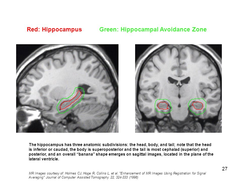 Hippocampal Contouring: A Contouring Atlas for RTOG ppt video online ...