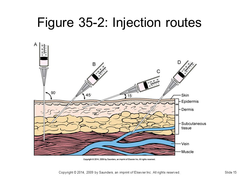 administering intradermal subcutaneous and intramuscular