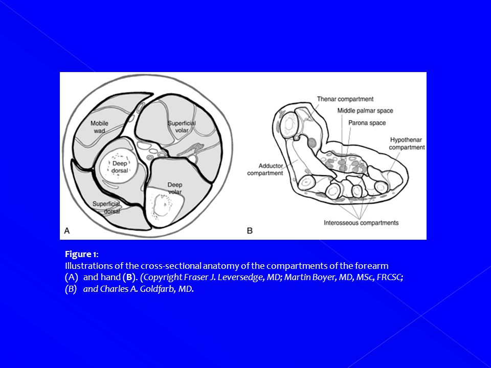 Injuries and Diseases of Hand and Wrist - ppt download