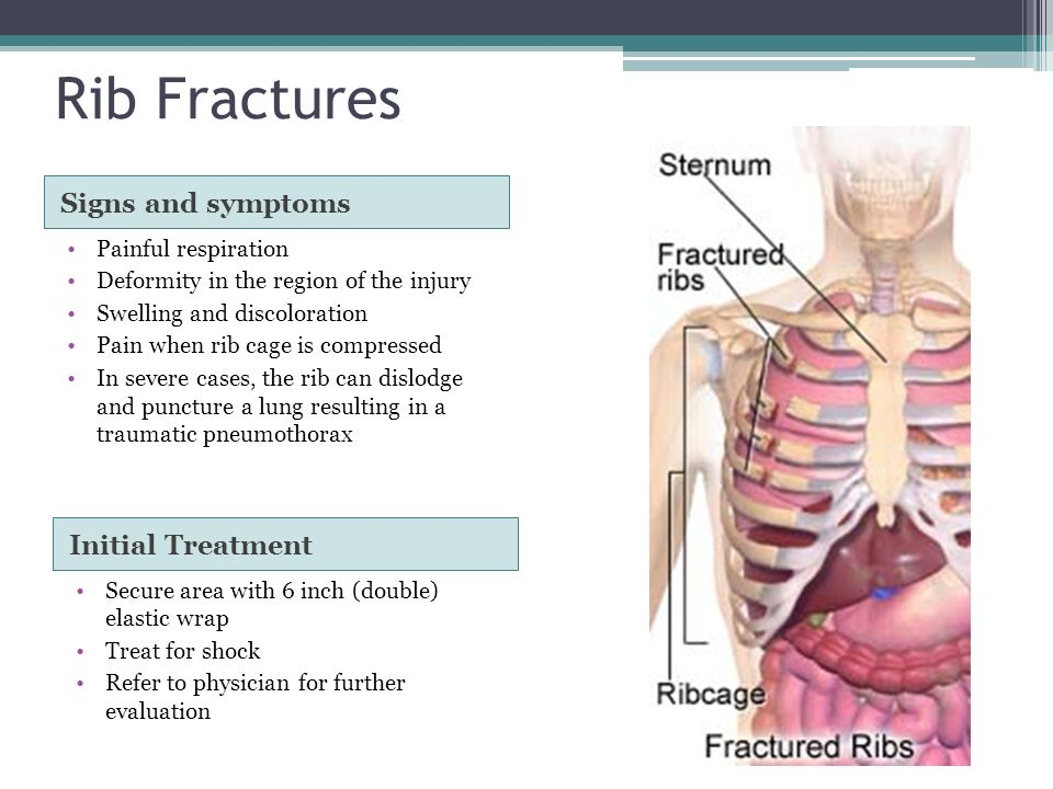 Injuries To The Spine  Ppt Video Online Download. Nursing Colleges In Florida Locate A Dentist. Get A Fast Free Web Browser Student Tap Card. Moving Companies Maryland Denture Vs Implant. Starting Your Own Restaurant. Pest Control Chicagoland It Degrees In Demand. Online Bible Colleges And Universities Accredited. Setting Up An Llc In Wisconsin. Carnival Cruise Coupon Book Brake Line Leak