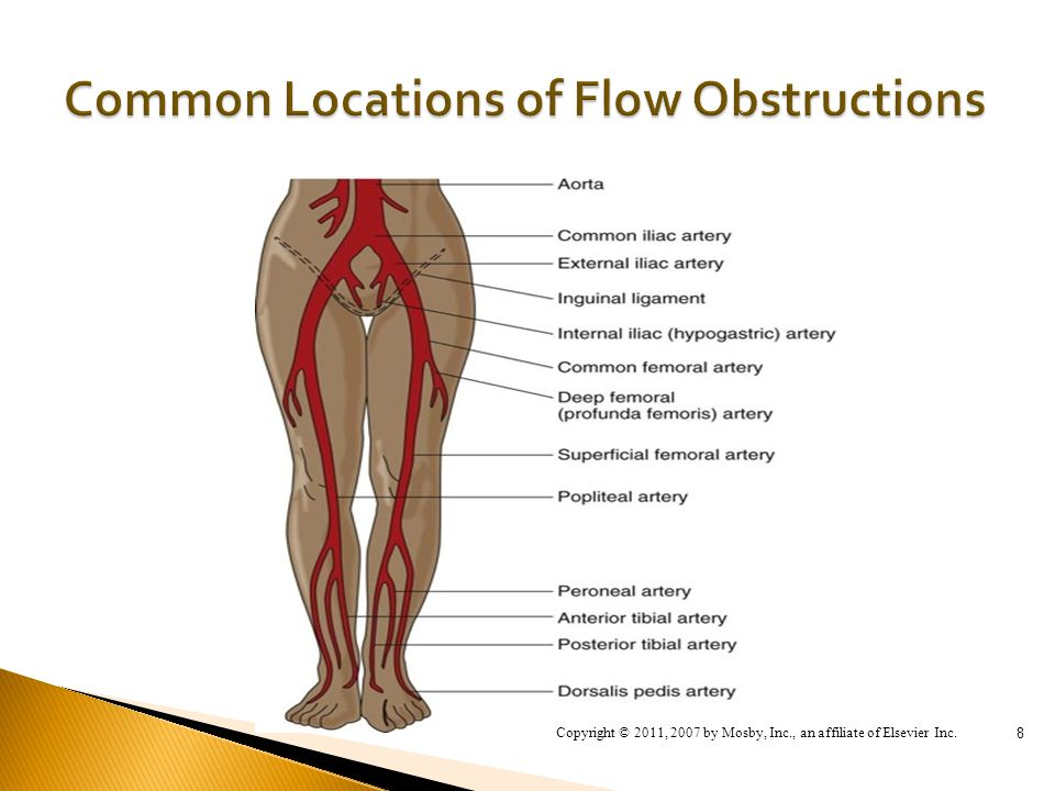 Focus on Peripheral Artery Disease of the Lower Extremities - ppt ...