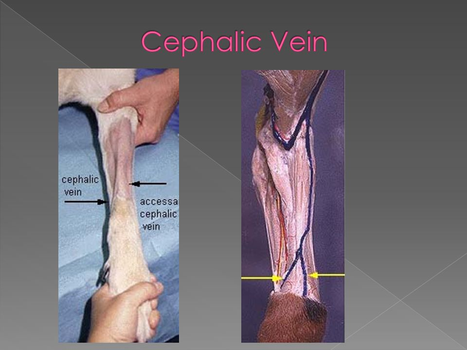 Images Of Cephalic Vein Cat Rock Cafe