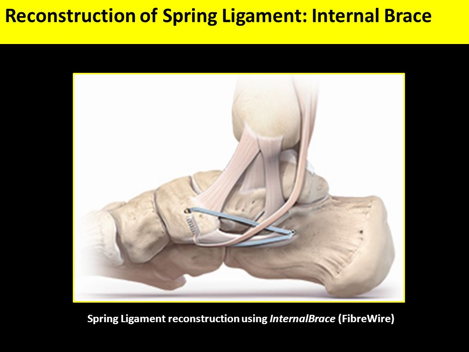 Treatment of Deltoid Ligament Injuries - ppt video online download