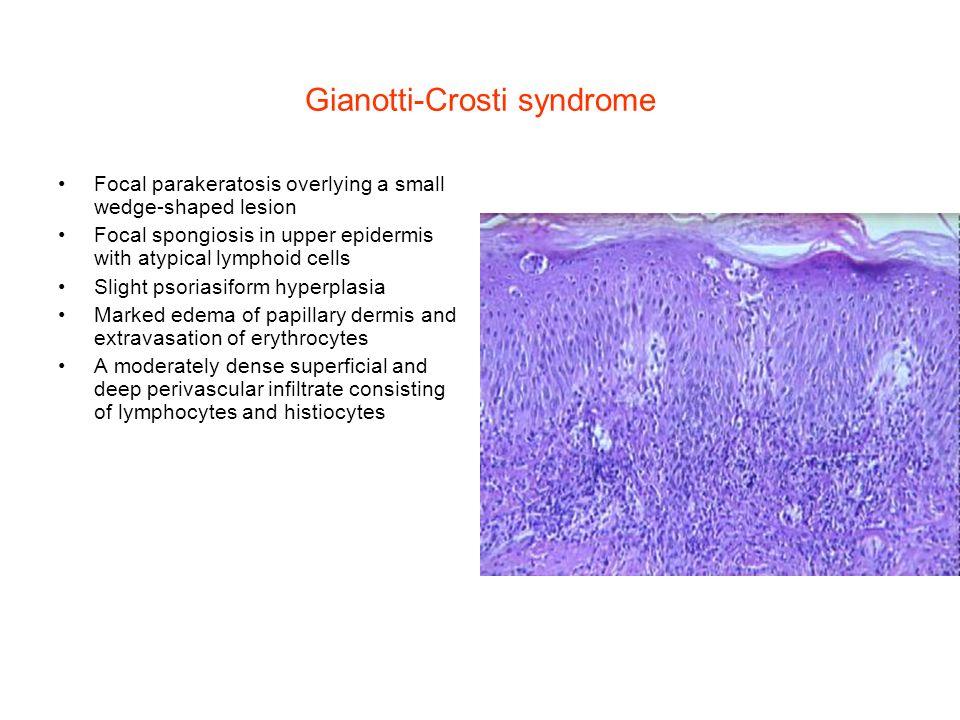 Gianotti Crosti Histology