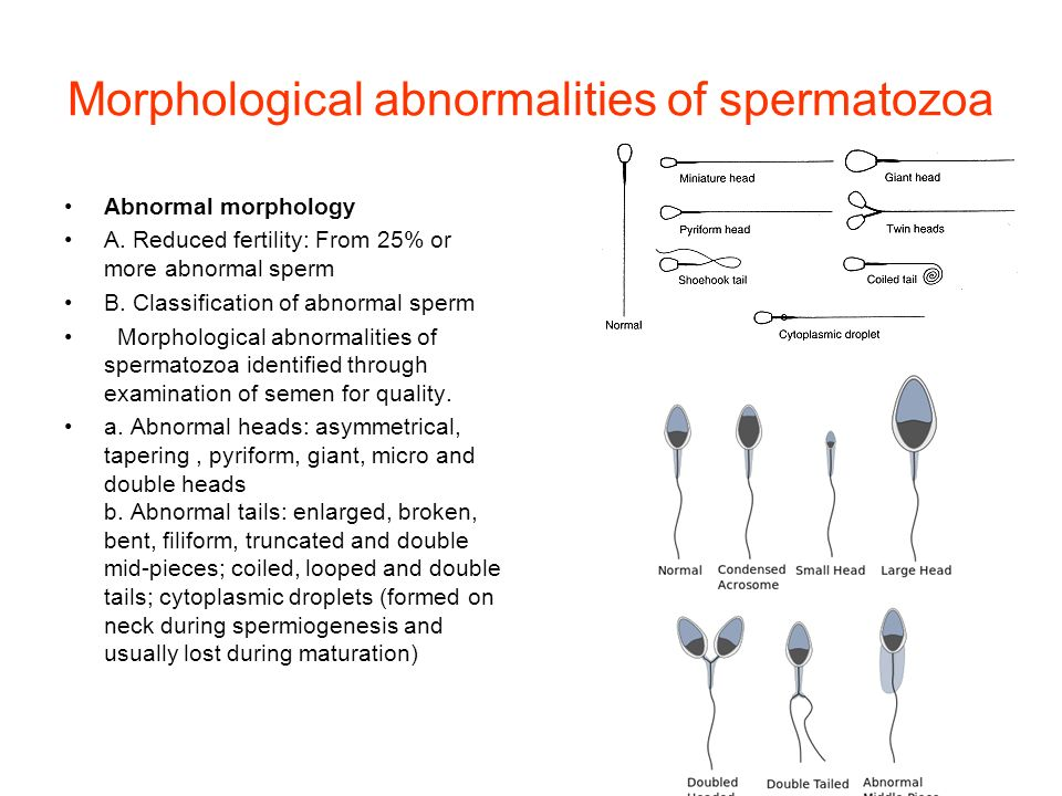 who-classification-for-sperm-morphology