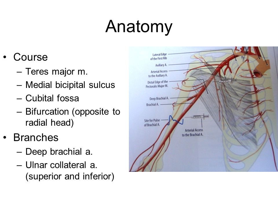 Brachial Artery Injury Ppt Video Online Download