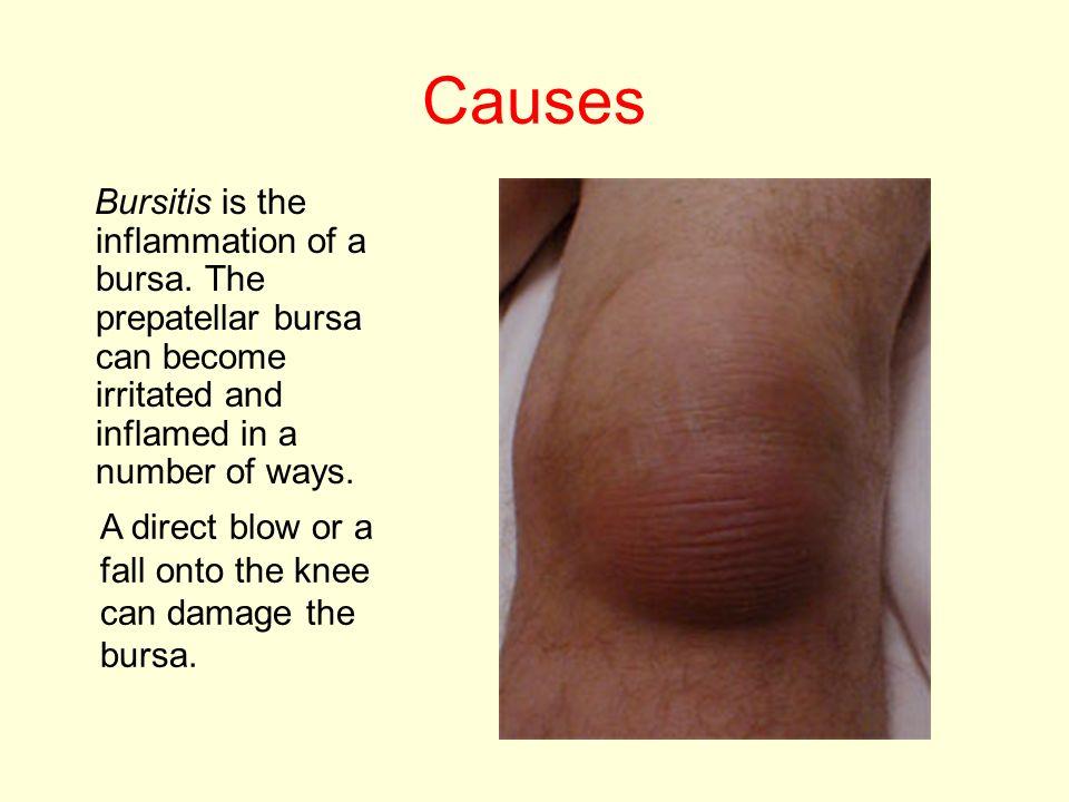 Injuries To The Knee Ligaments Tendons Menisci Patella Bursa Ppt