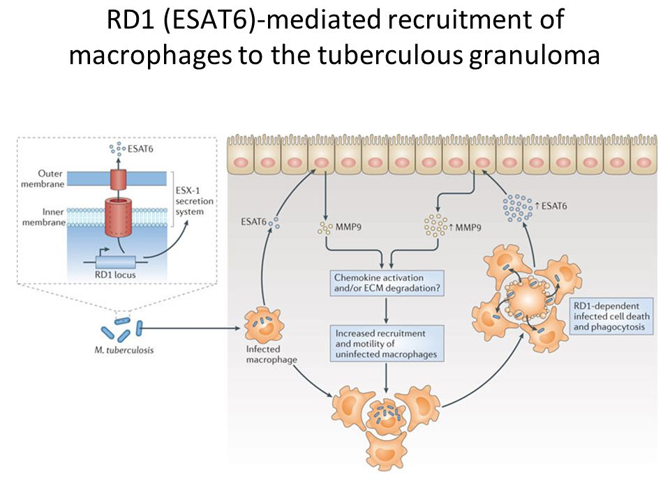 RD1 (ESAT6)-mediated recruitment of macrophages to the tuberculous granuloma