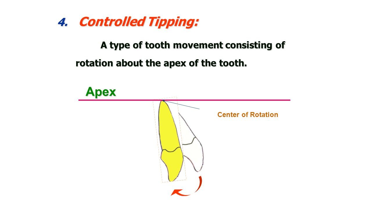 biological principle of orthodontic tooth movements ppt video Adult Teeth Diagram controlled tipping a type of tooth movement consisting of rotation about the apex of the