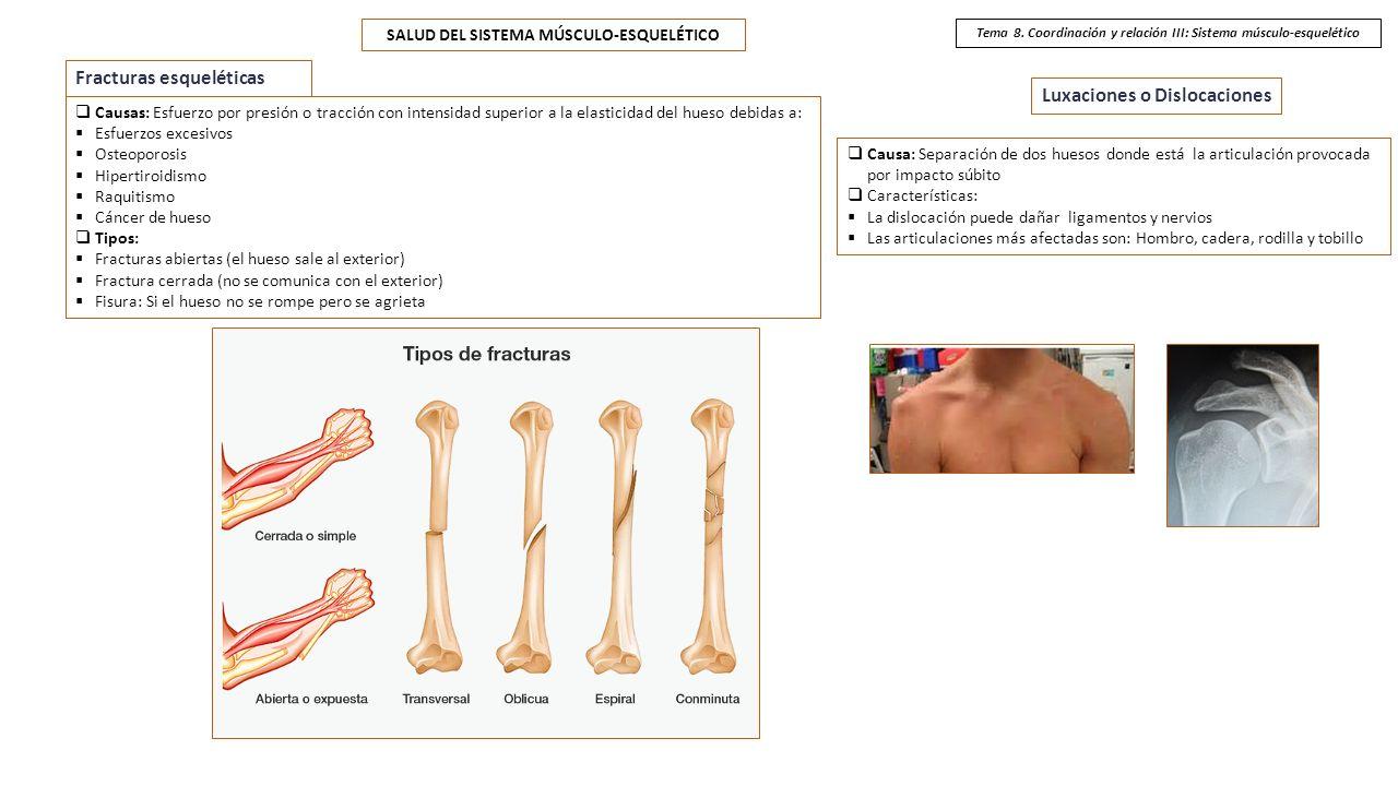 Tema 8. Coordinación y relación III: Sistema músculo-esquelético ...