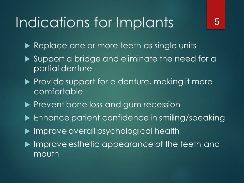 Chapter 53 Dental Implants Ppt Download