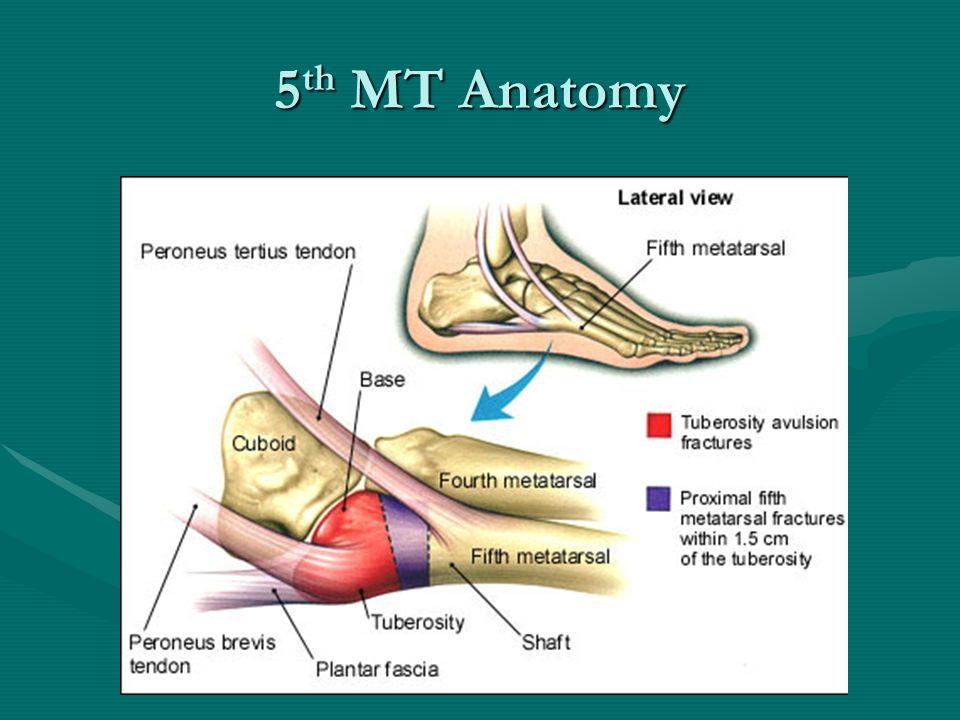 Awesome 5th Metatarsal Anatomy Images - Anatomy Ideas - yunoki.info