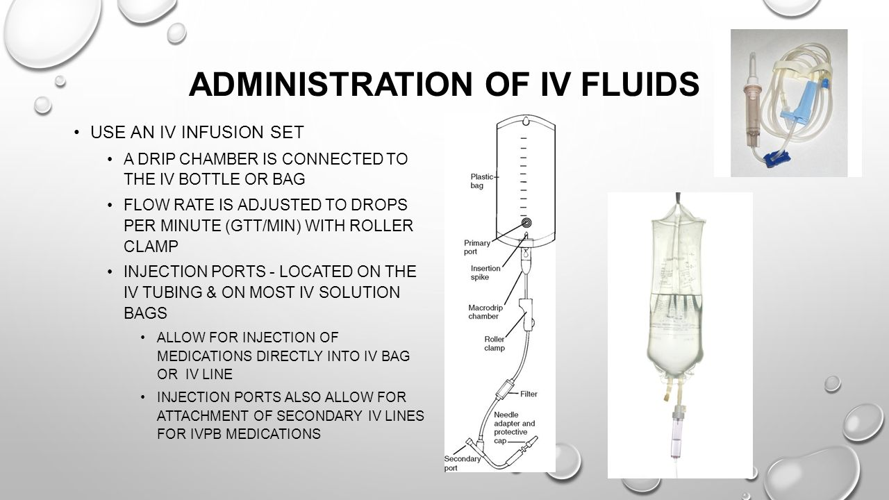 Administration of IV Fluids