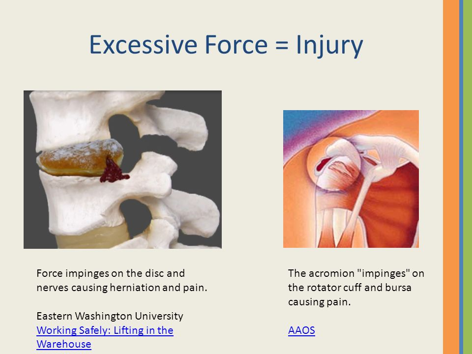 Excessive Force = Injury