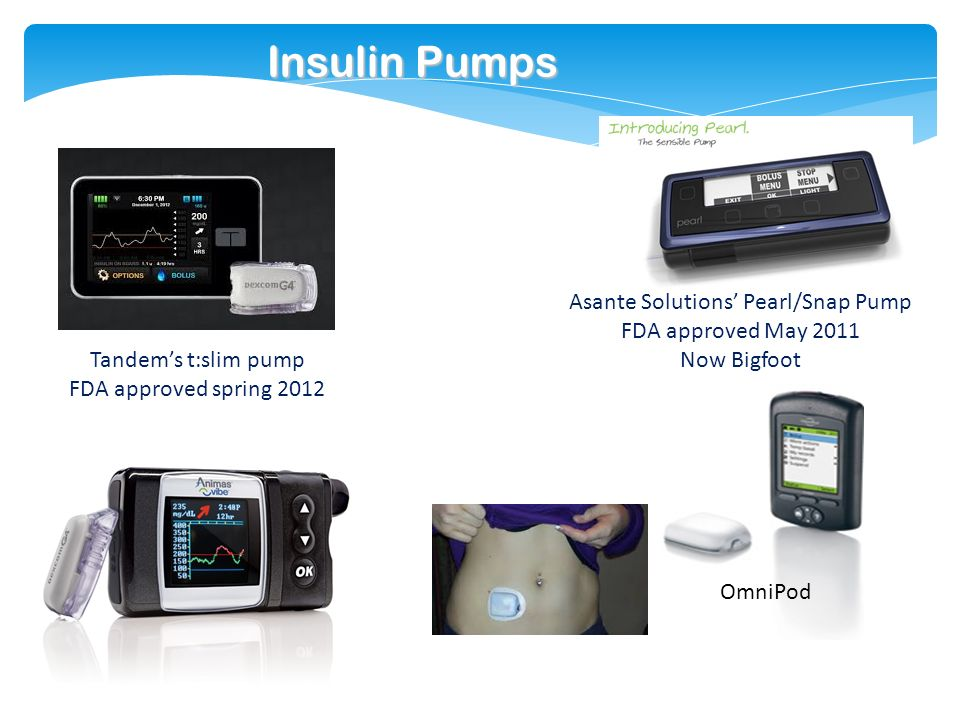 Research & Development Type 1 & Type 2 Diabetes - ppt download