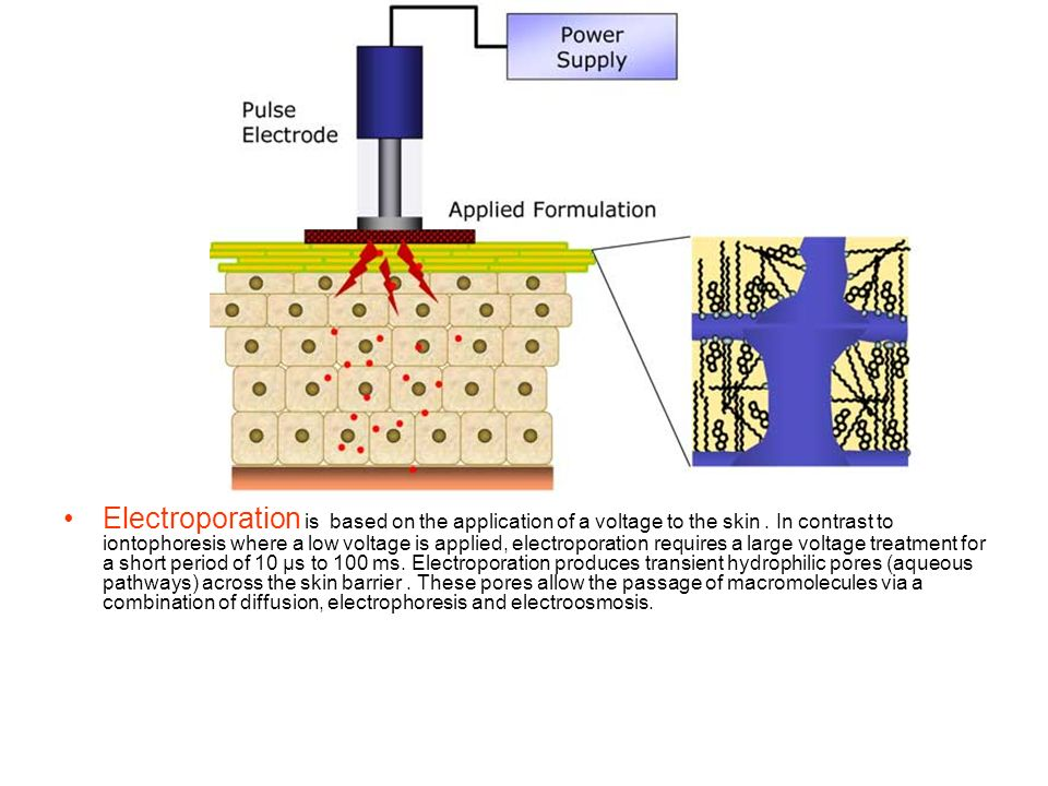 Electroporation is based on the application of a voltage to the skin