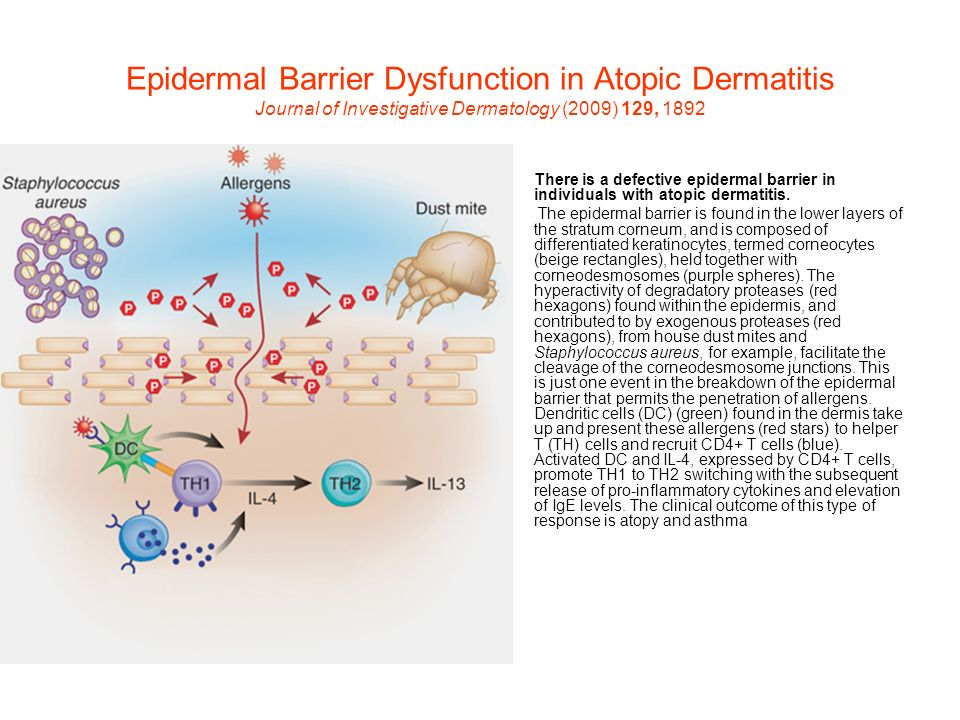 Epidermal Barrier Dysfunction in Atopic Dermatitis Journal of Investigative Dermatology (2009) 129, 1892