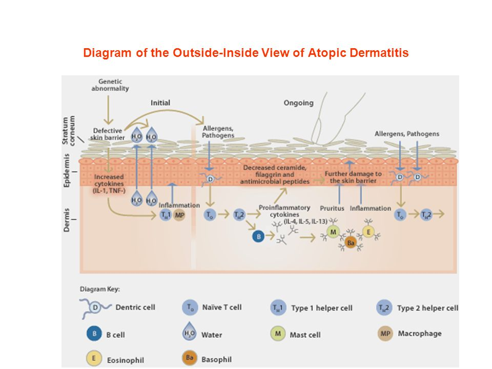 Diagram of the Outside-Inside View of Atopic Dermatitis