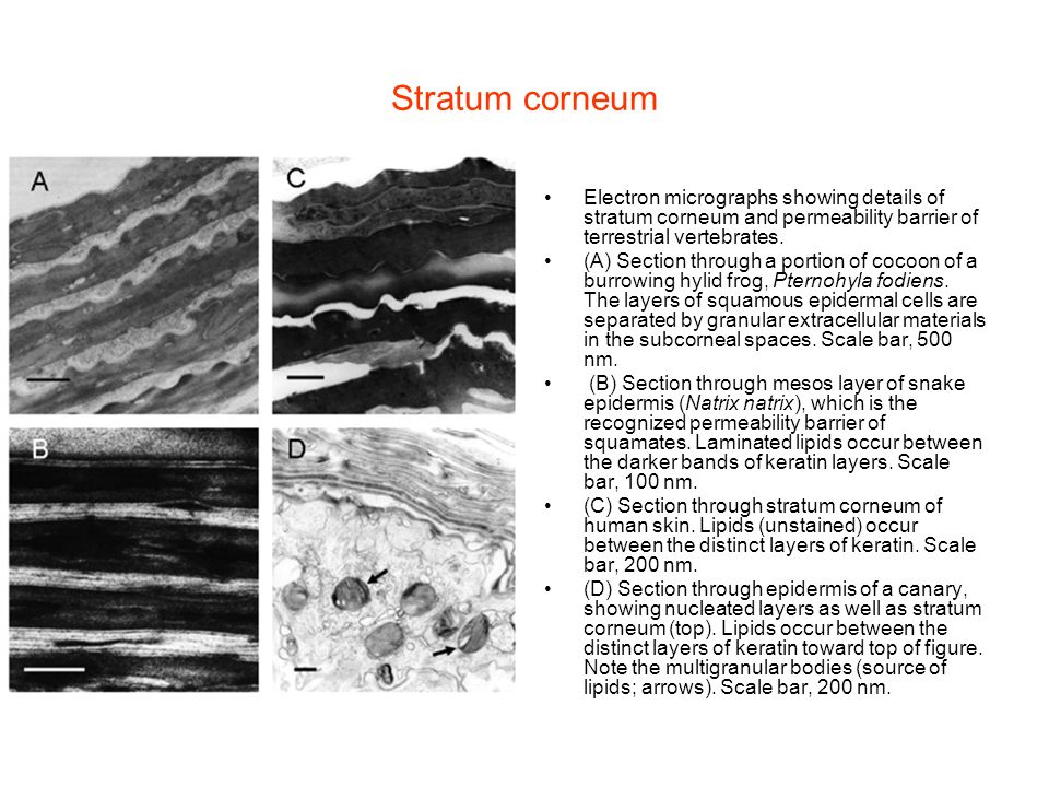 Stratum corneum Electron micrographs showing details of stratum corneum and permeability barrier of terrestrial vertebrates.