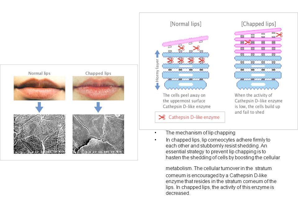 The mechanism of lip chapping
