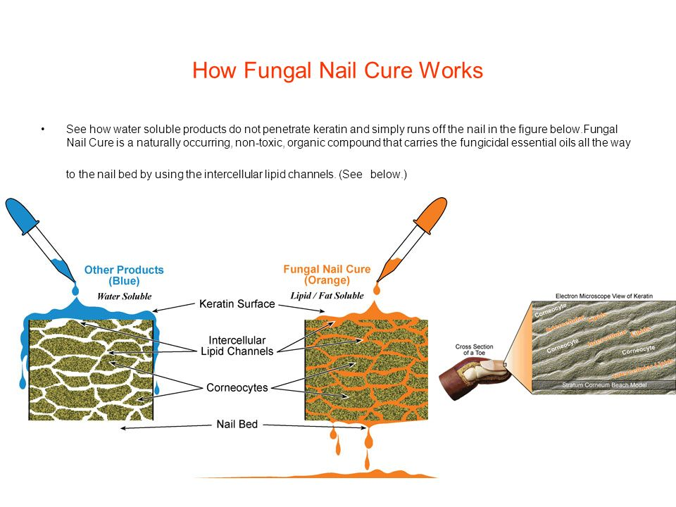 How Fungal Nail Cure Works