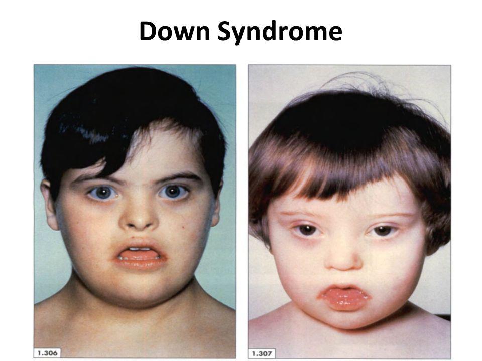 Genetic Disorders Dr  Mohamed Hesham Sayed Professor of