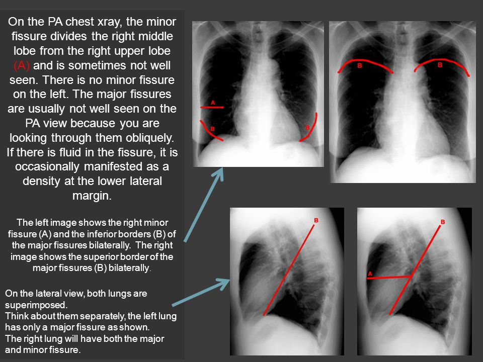 Diagnostic Imaging Normal chest Anatomy on XR. - ppt video online ...