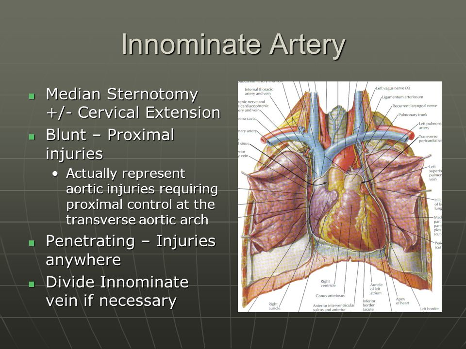 Thoracic Great Vessel Injuries Ppt Video Online Download