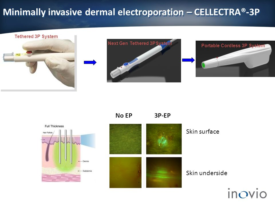 Minimally invasive dermal electroporation – CELLECTRA®-3P